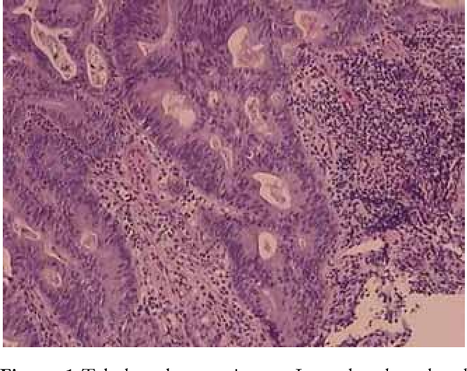 gastric cancer pathology)
