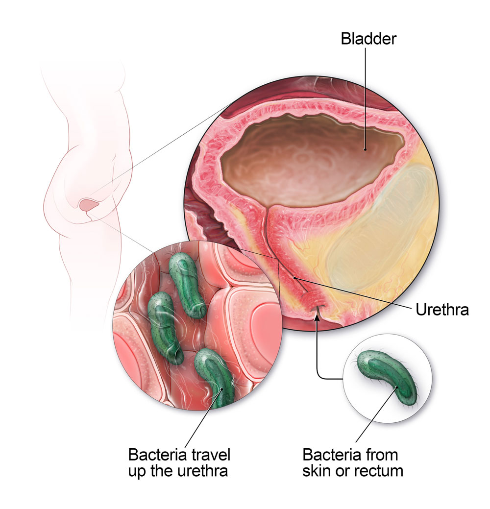 can hpv virus cause bladder infections