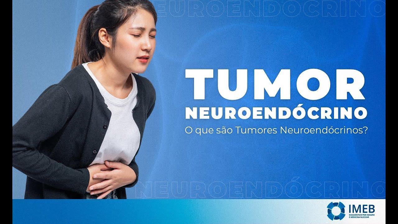 cancer de pancreas neuroendocrino)