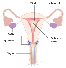 cervical cancer how long does it take to develop papiloma humano tipos