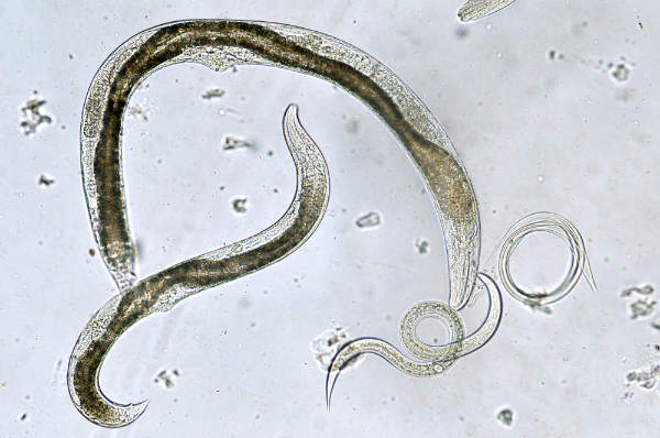 tipuri de paraziti la om)