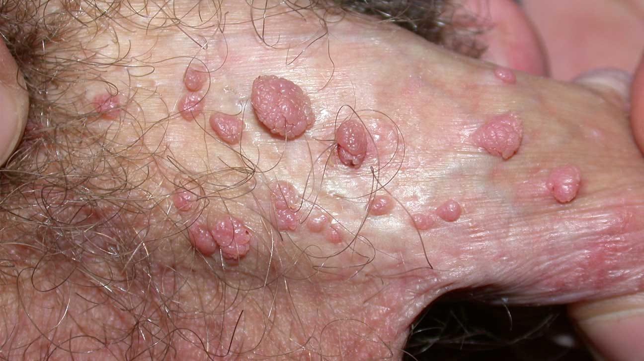 virus del papiloma humano en glande