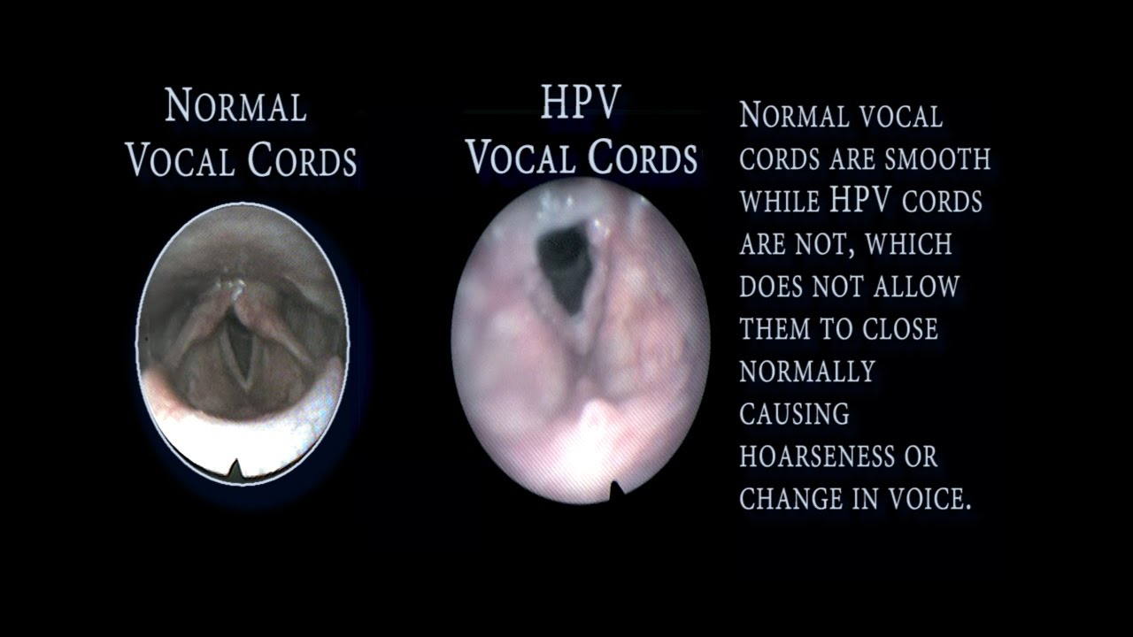 treatment for vocal cord papilloma