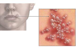 human papillomavirus simptome)