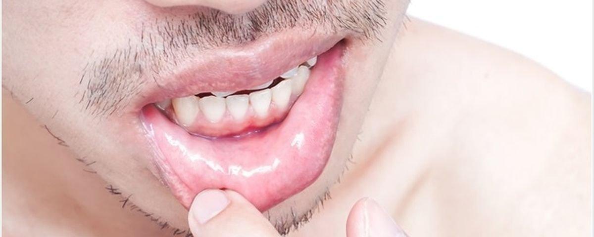 Tratarea varicelor sau unitate de pernă tver