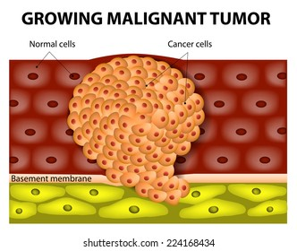 cancer benign or malignant)