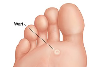 hpv virus and warts on feet)