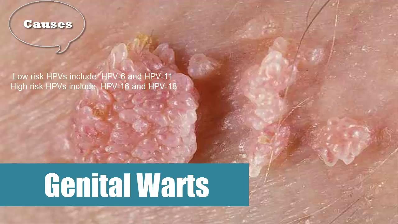 human papillomavirus warts virus)