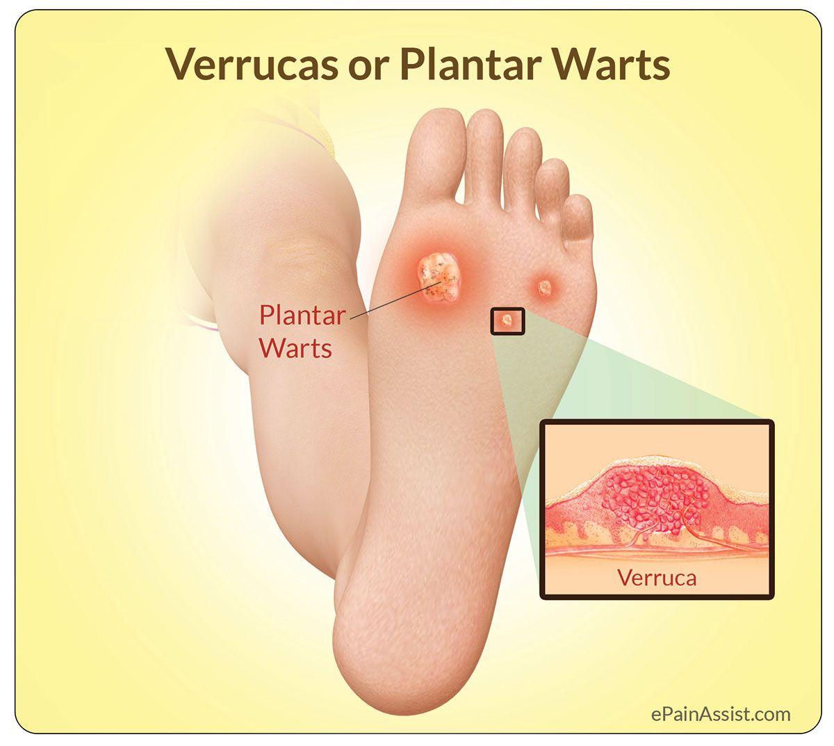 foot warts verrucas)