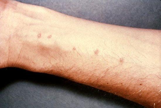 schistosomiasis worms)