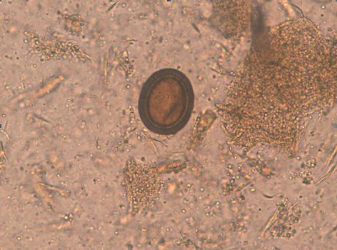 analize depistare paraziti intestinali)