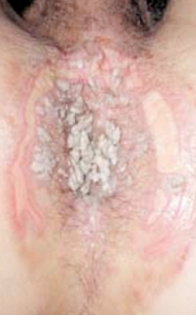 papillomavirus maladie venerienne