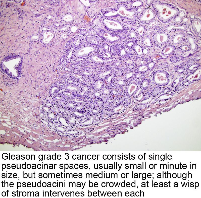 cancer de prostata gleason 6 3+3 ce e cancerul cervical