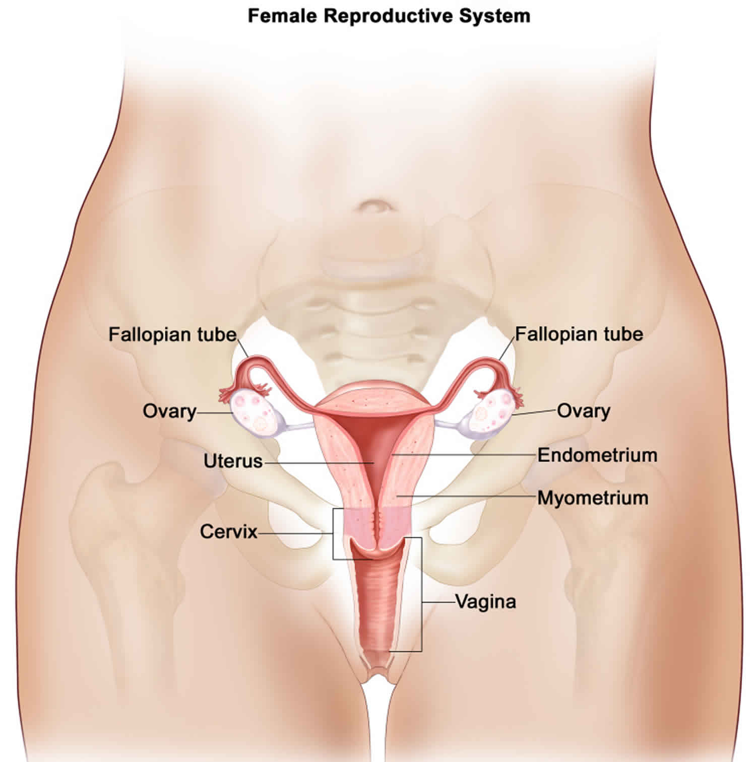 ovarian cancer with peritoneal carcinomatosis)
