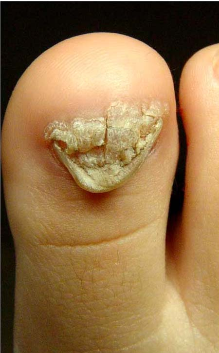 squamous papilloma foot