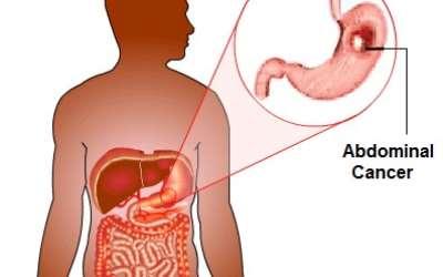cancer en abdominal