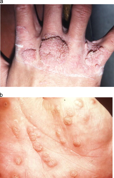 hpv affecting skin)