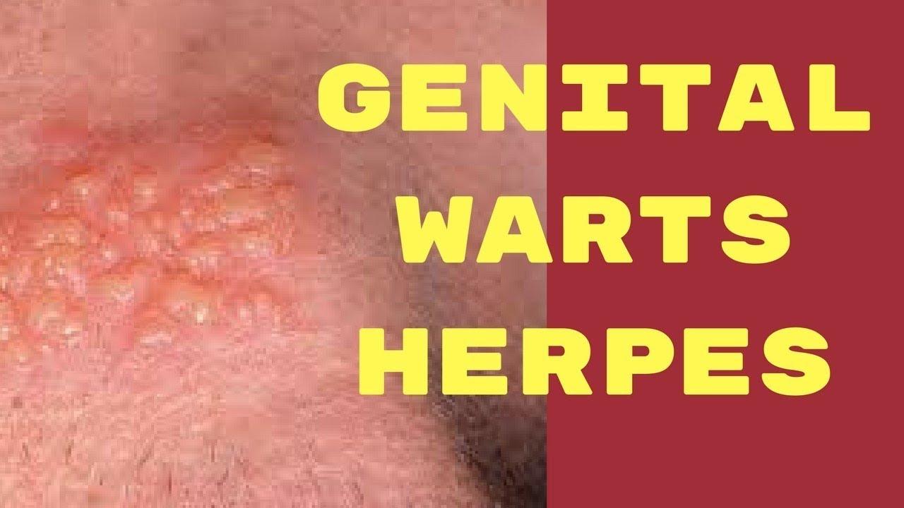 herpes genitale papilloma)