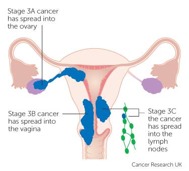 uterine cancer nz