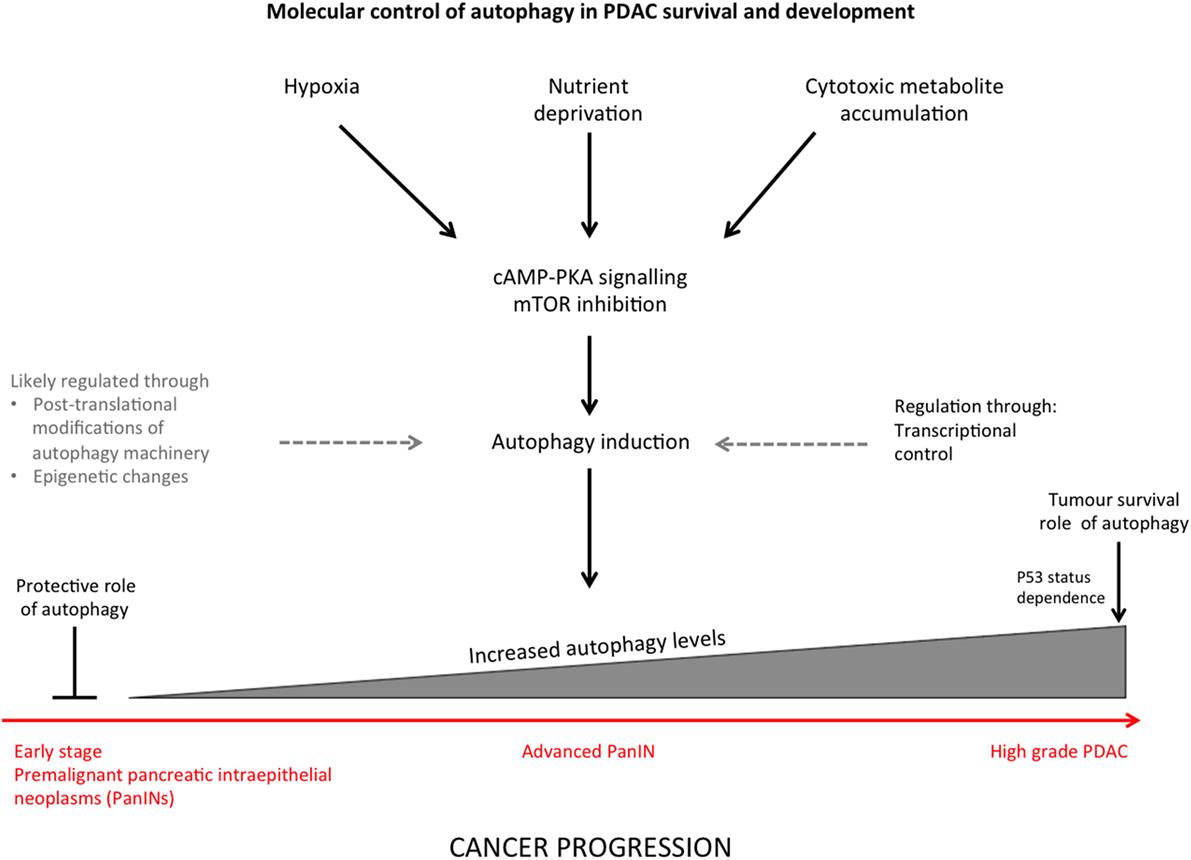 cancer la cap de pancreas)