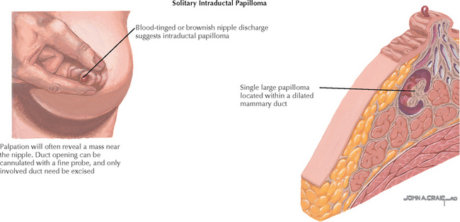 intraductal papilloma discharge