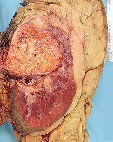 cancer de renal)