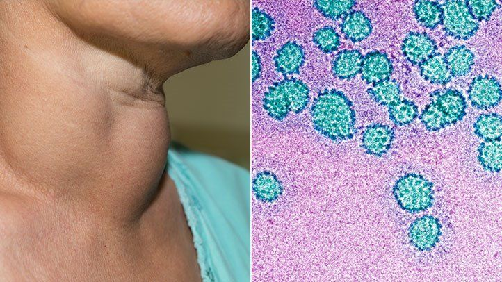 hpv oropharyngeal cancer transmission