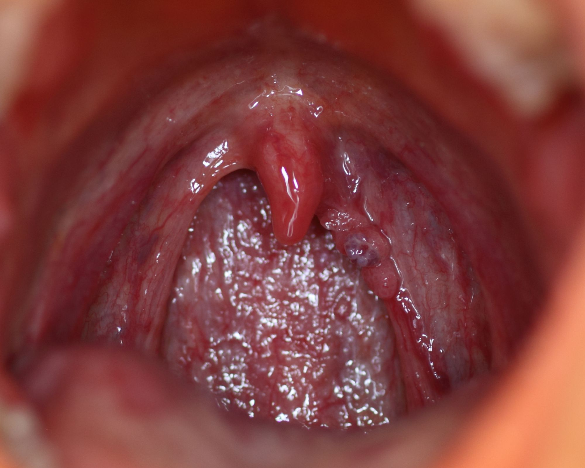 hpv in tongue pictures cheloo noutati