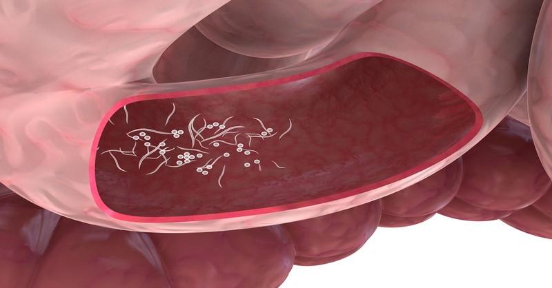 Homeopatie helminthům paraziti