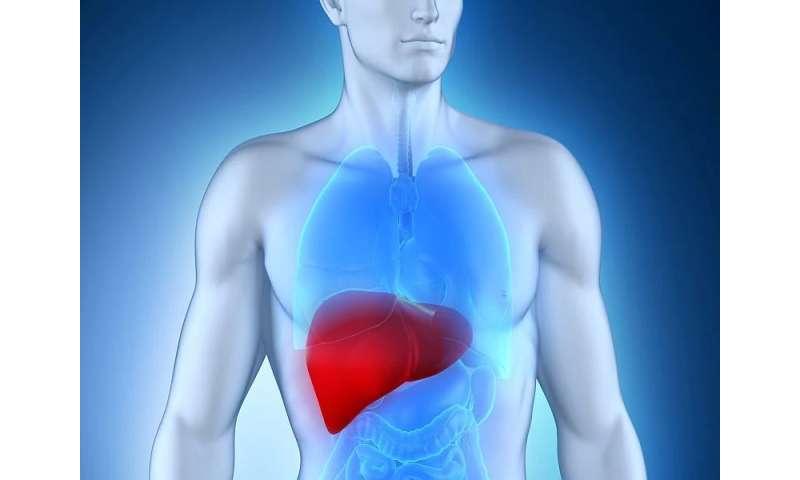 hepatocellular cancer medscape
