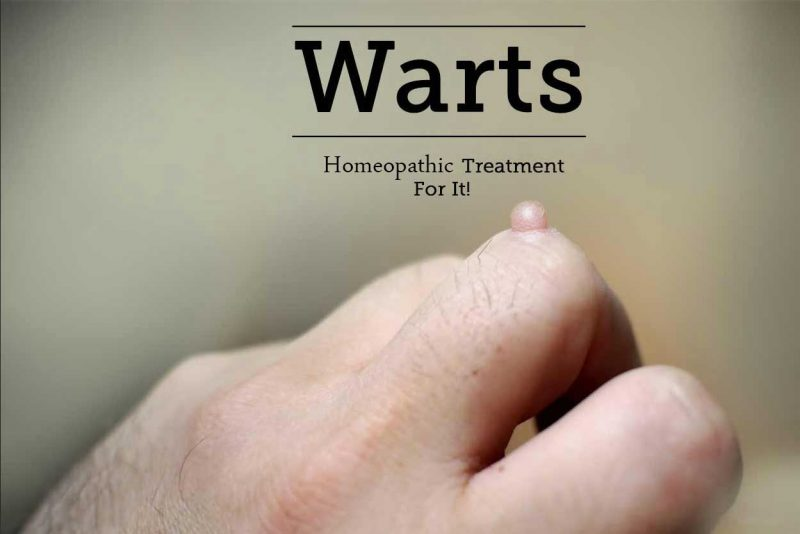 warts homeopathic cure cancer al gurii