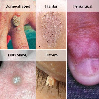 seed warts on hands pictures