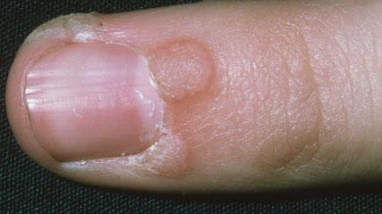 foot wart banana peel