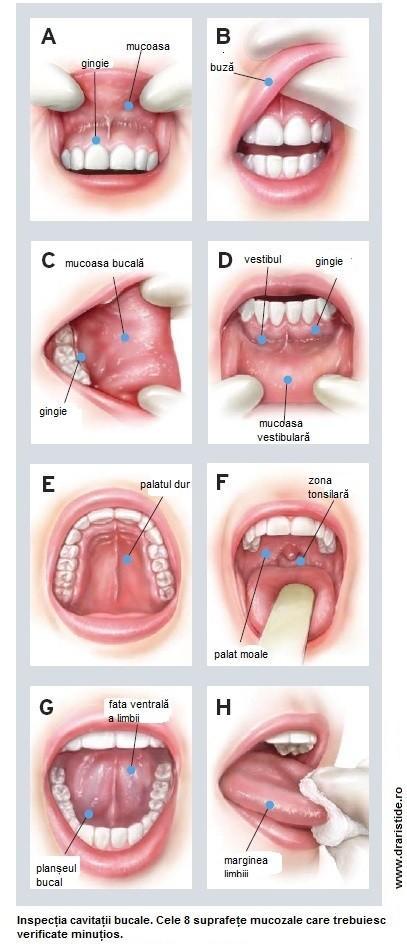 cancer cavitatea bucala simptome