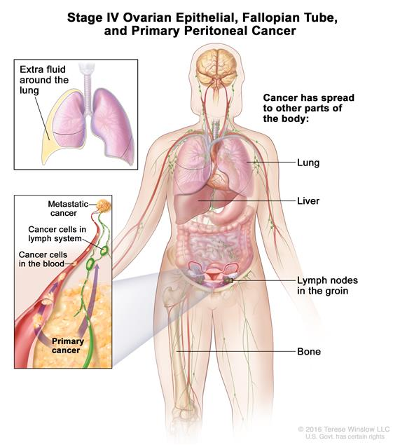 peritoneal cancer detection