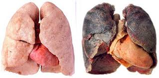 hpv infection and lung cancer)