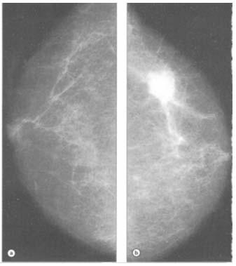 Medic: Cancerul mamar la 20 de ani nu mai e o raritate