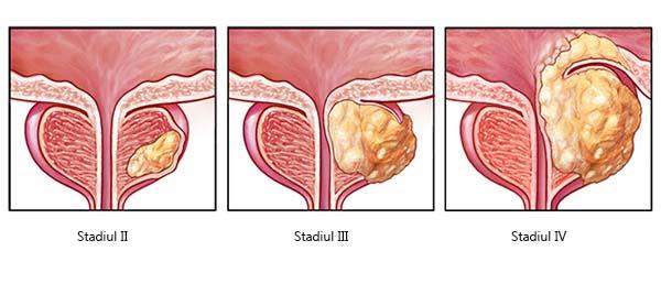 cancer de prostata stadiul 3 contagio papilloma virus sintomi