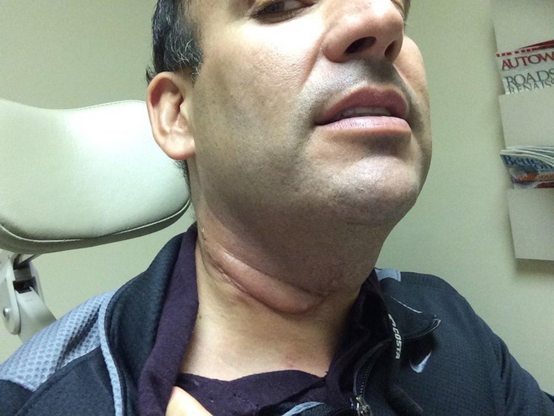 human papillomavirus-related head and neck cancer)