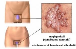 human papillomavirus simptome