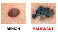 skin cancer benign and malignant