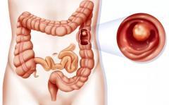 detoxifiere naturala a colonului