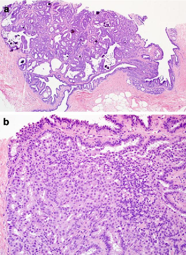 papilloma biopsy breast)