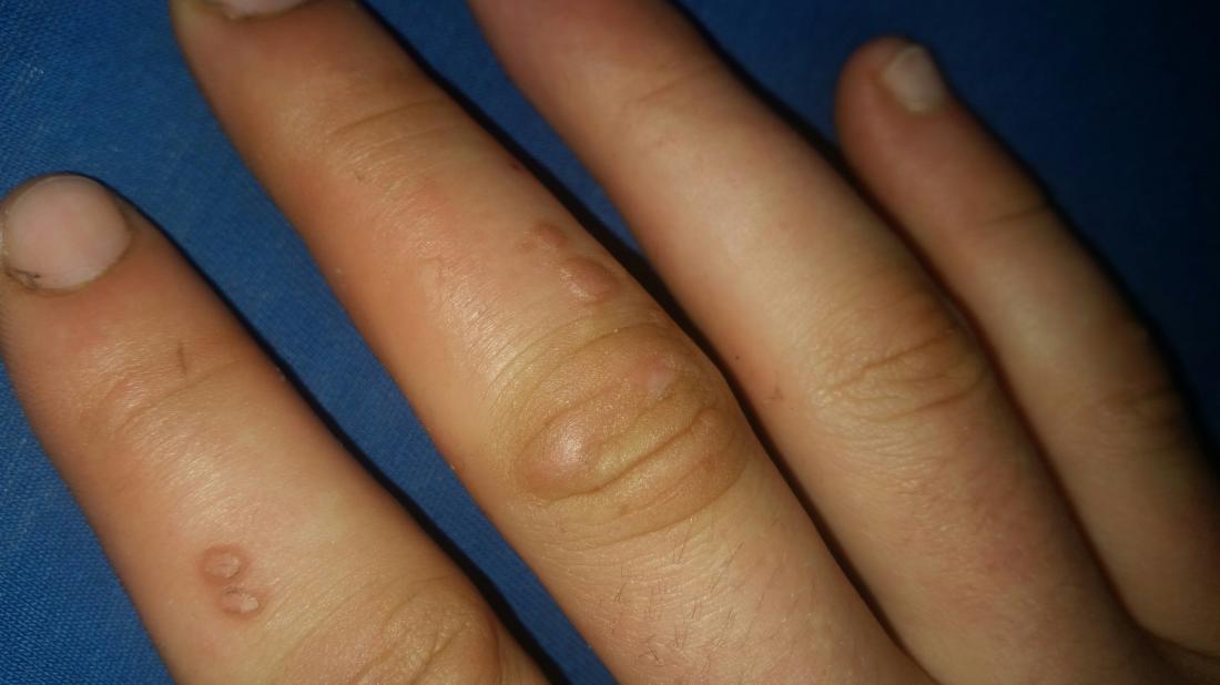 warts on hands genital