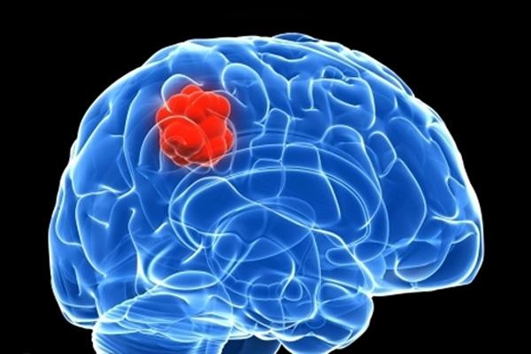 cancer cerebral ultimos dias