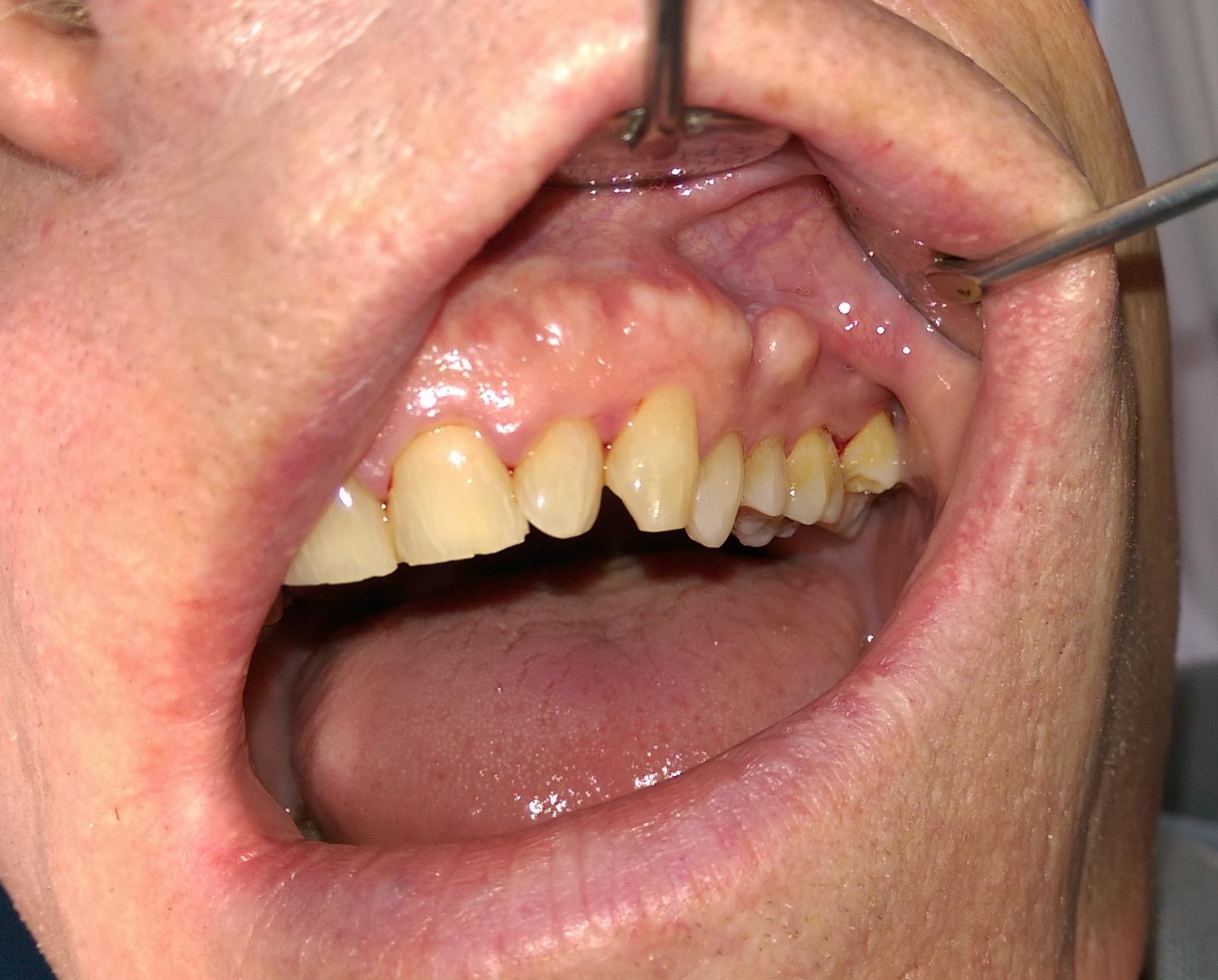 Turmericul este superior apei de gura chimice in imbunatatirea sanatatii orale | evenimente-corporate.ro