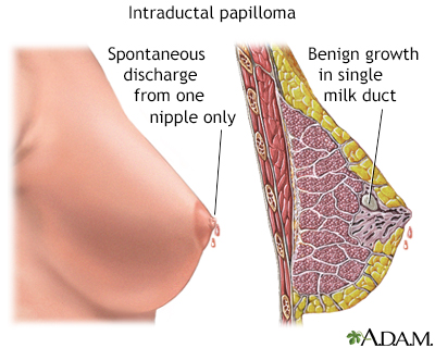 intraductal papilloma removal recovery time)