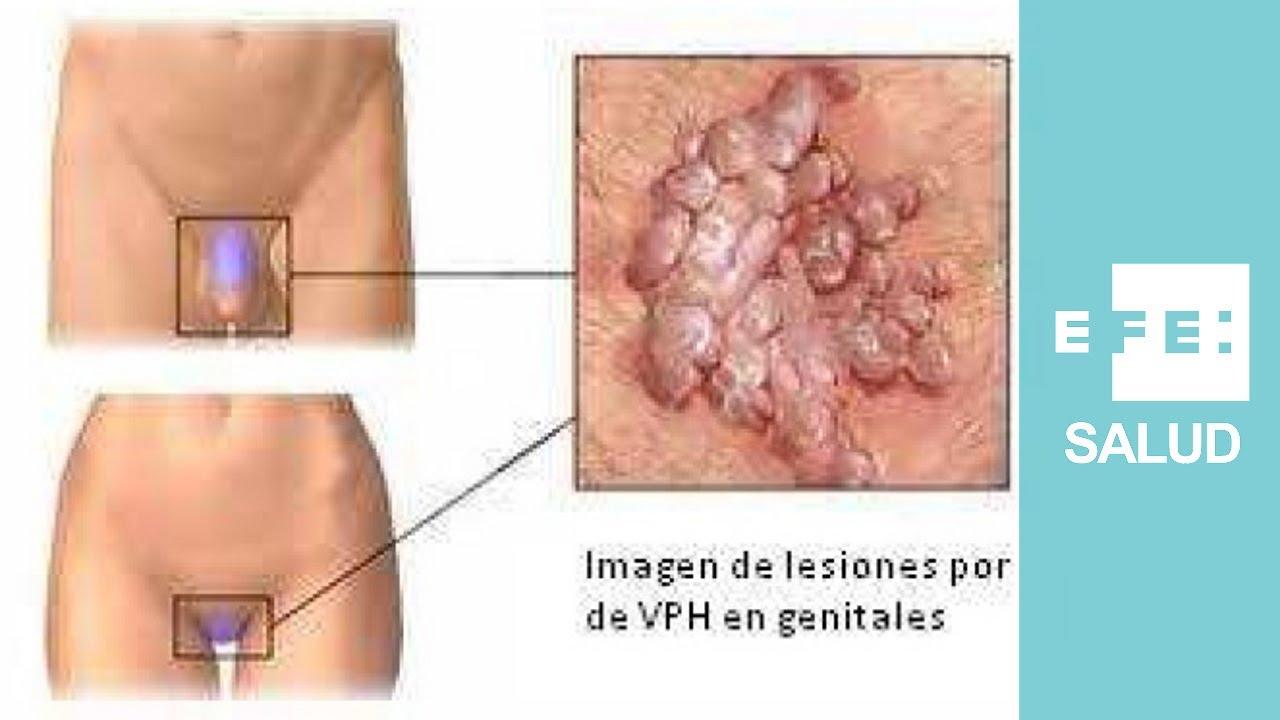 como se transmite a papilomavirus humano)