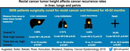 sarcoma cancer in leg
