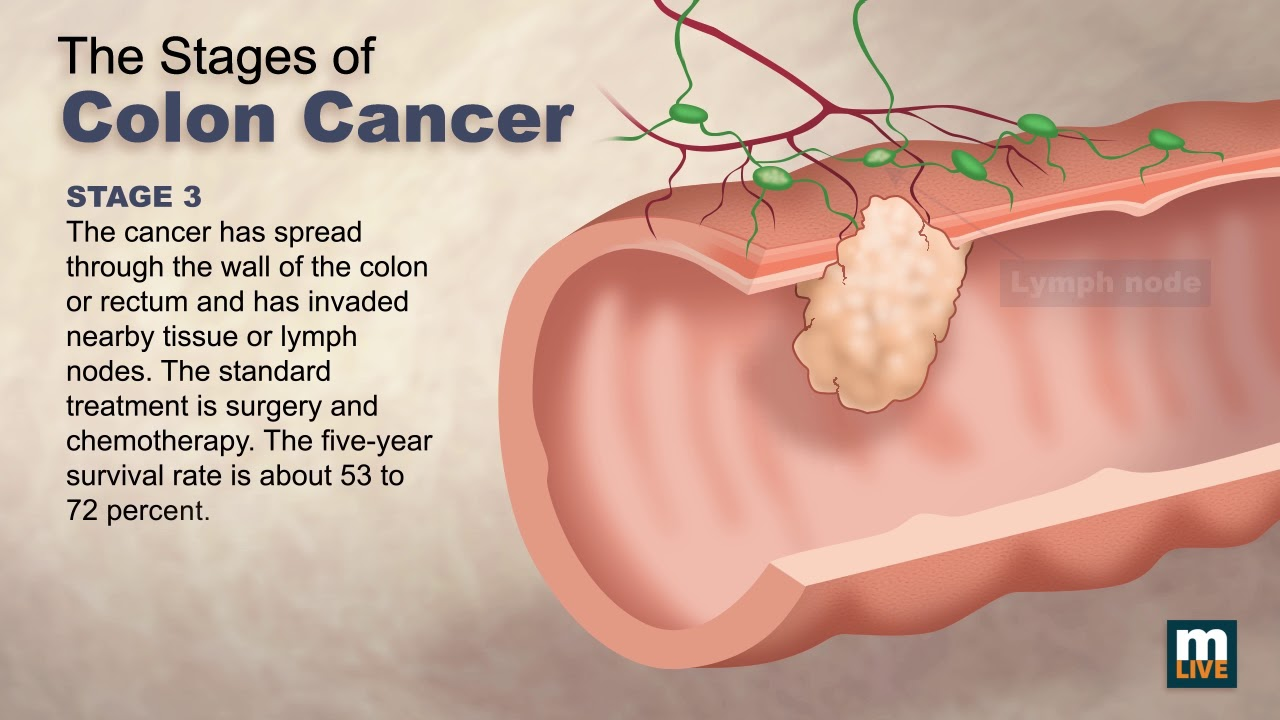 colorectal cancer by stage)
